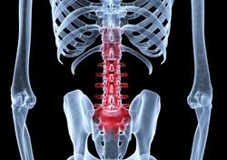 lower-back-pain-x-ray-artwork-david-mack.jpg
