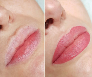 Before & After Lip Blush