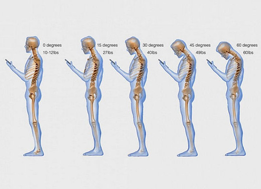 iPad generation sees huge rise in back and neck pain