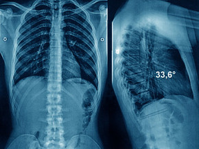 The Puzzling Popularity of Back Surgery in Certain Regions