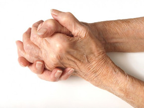 Overall physical health strongly predicts arthritis pain