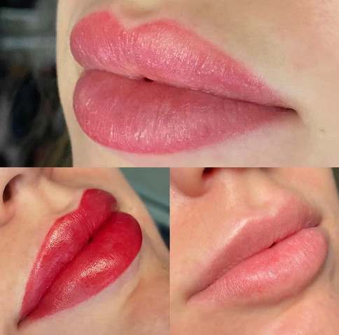 Lips Before Touch-up & After