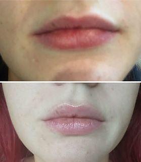 Derma plane lip plump.jpg