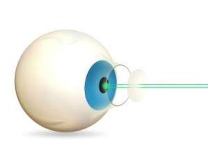 Cataracts1.jpg