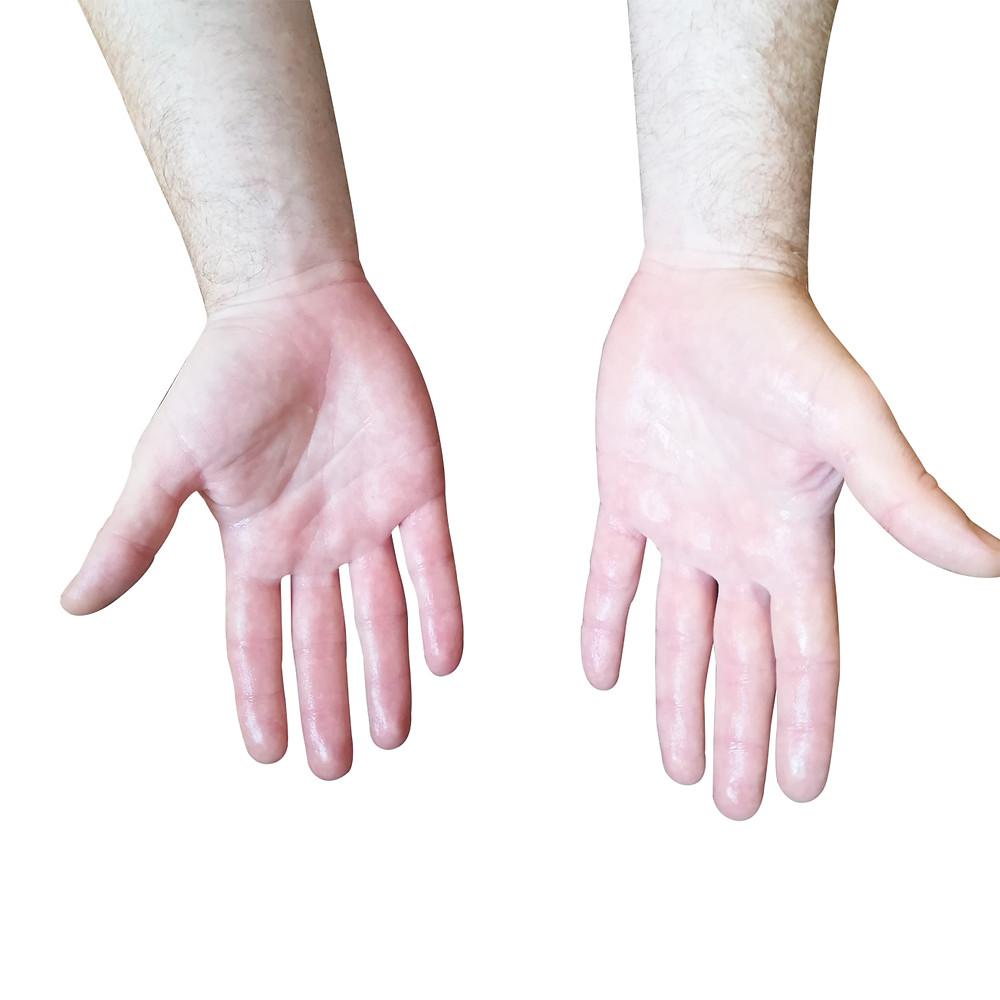 הזעת יתר בכפות הידיים