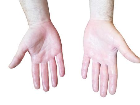 האם יש הוכחה מדעית ליעילות המכשיר למניעת זיעה בידיים?