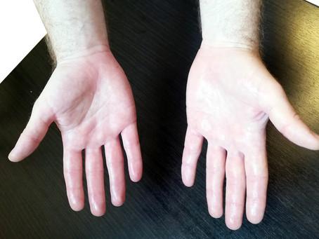 האם יש מגבלות לגבי השימוש במכשיר למניעת הזעה בכפות הידיים והרגליים?