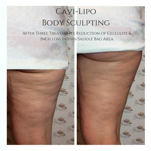 Cavi-Lipo Body Sculpting.png