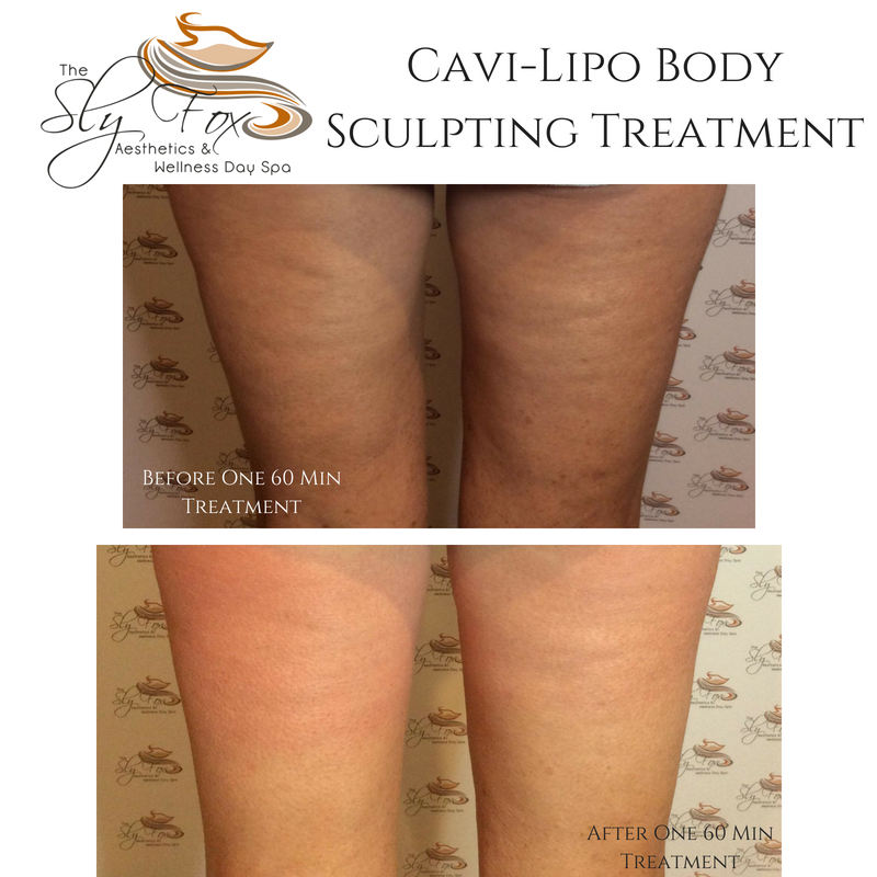 Cavi-Lipo Body Sculpting Treatment.png