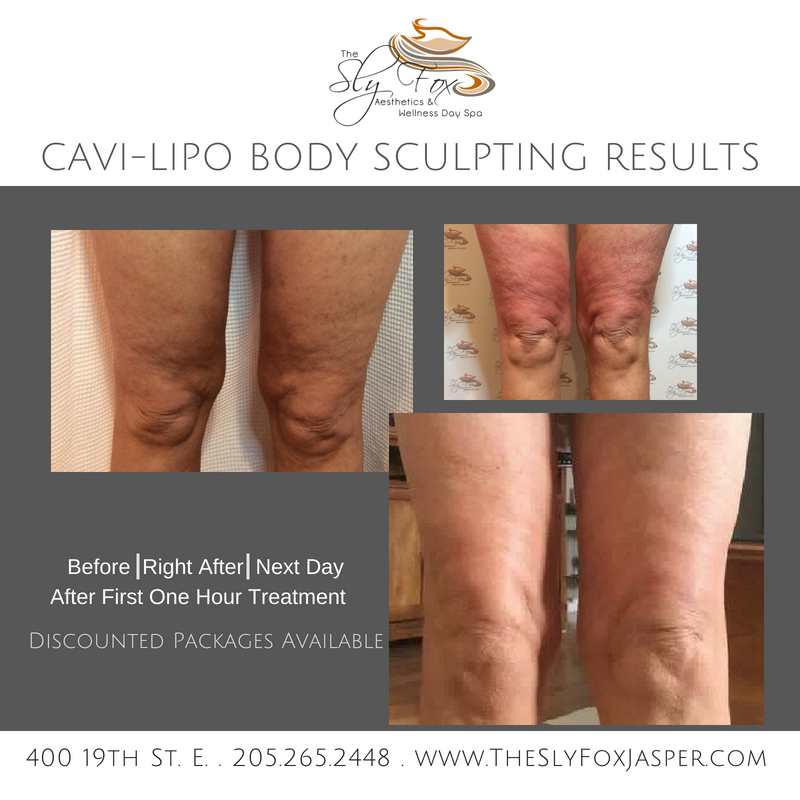 Cavi-Lipo Body Sculpting Results_-2.png