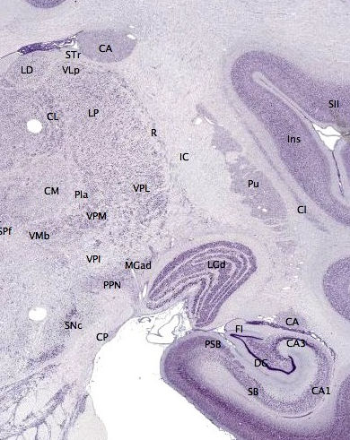 Coronoary brain section through the hippocampus showing signs of Alzheimer's Disease