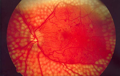 Image of fundus showing scatter laser surgery for diabetic retinopathy