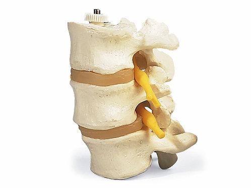Vértebras Lombares - A768 - 3B Scientific