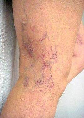 skleroterapia lublin