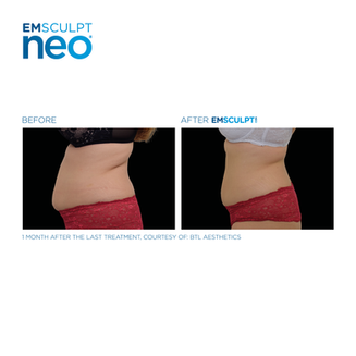 Emsculpt_Neo_POST_October-Calendar_27102