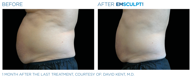 Emsculpt neo helps men and women