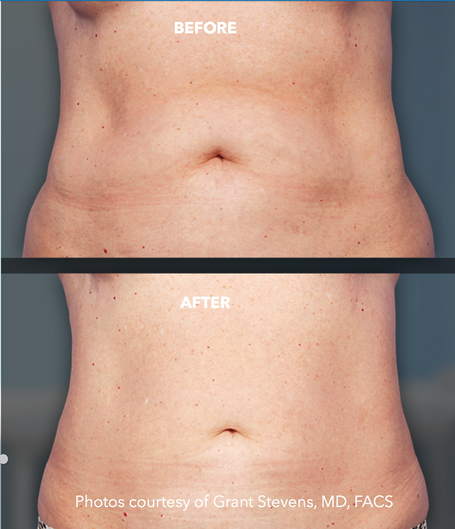 Before and after Coolsculpting abdomen
