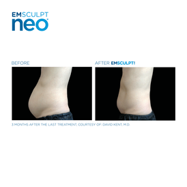 Before and after Emsculpt for men