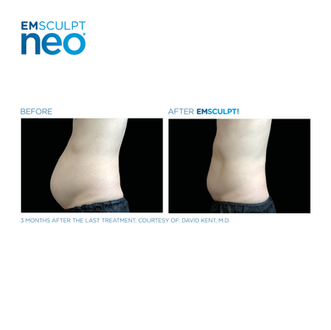 Emsculpt_Neo_POST_October-Calendar_24102