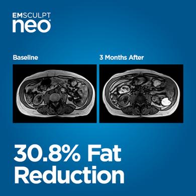 Emsculpt neo fat reduction