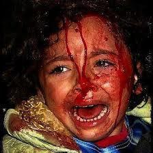 war child bloody face.jpeg