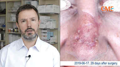 Usunięcie nowotworu + A-PRP