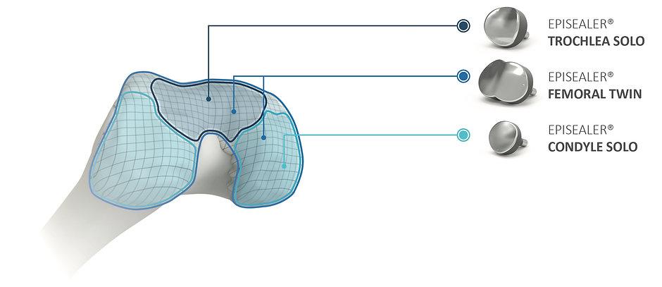 Episealer-knee-HHR-1.jpg