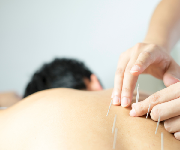 Increasingly, acupuncture is becoming part of western medicine therapeutic options.