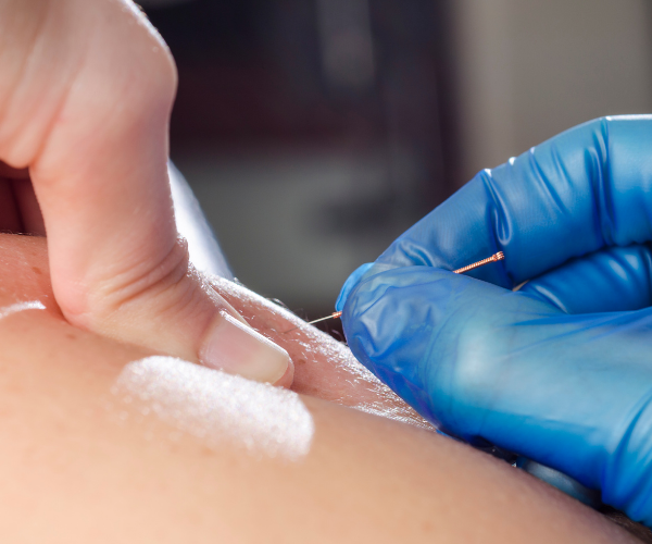 Does Dry Needling work for low back pain?