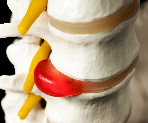 Tears in our disc walls can cause the soft core to push through and press on the nerves of the spine, causing pain. This is called a bulged or herniated disc.
