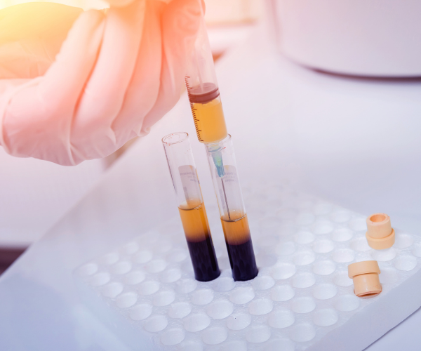 Platelet rich plasma injections are considered to be experimental therapy when treating low back pain.