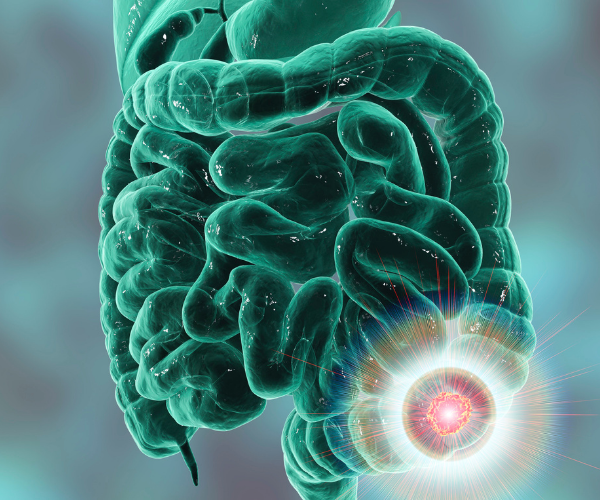 Colon cancer and rectal cancer often have other symptoms than just low back pain.