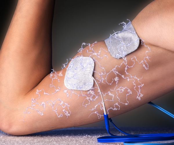 Electronic stimulation is increasingly being used to treat low back pain.