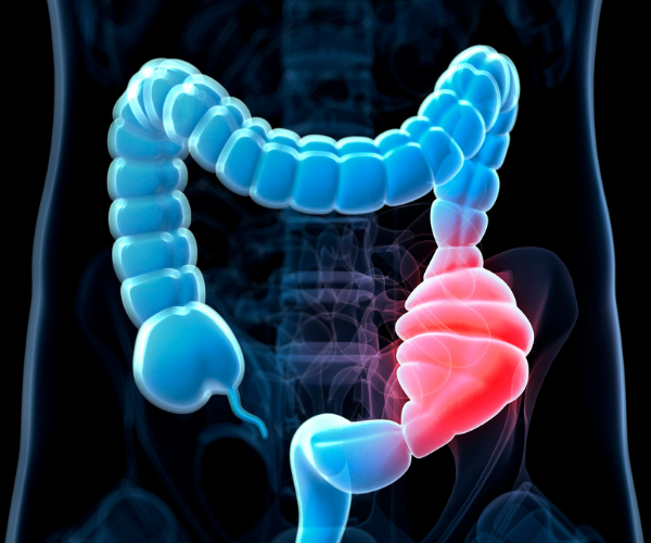 Underlying health conditions like inflammatory bowel disease can cause constipation.
