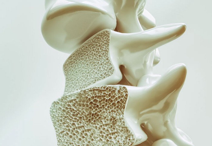 Over time, wear and tear of the disc and facet joints can cause osteoarthritis of the low back.