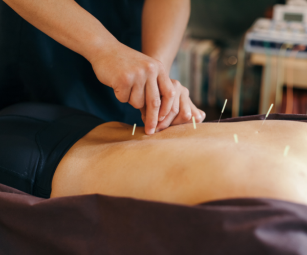 Acupuncture is a type of medicine based on an ancient traditional Chinese form of healing