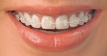 Ceramic-Braces-Carousel-Orthodontics.jpg