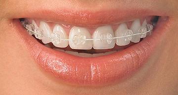 Ceramic-Braces-Carousel-Orthodontics.jpg