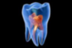 endodontics-article