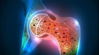 Imaggine1 osteoporosi.jpg