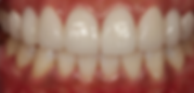 Dr. Eugene Lim at Healing Dental Care in Los Angeles provides cosmetic/esthetic dentistry such as veneer (laimnate) crowns.