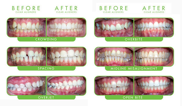 Dental orthodontic treatment is provided with clear aligners from ClearCorrect at Healing Dental Care in Los Angeles.