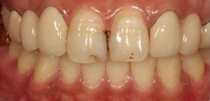 Dr. Eugene Lim at Healing Dental Care in Los Angeles provides cosmetic/esthetic dentistry such as veneer (laminate) crowns.