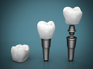Dr. Eugene Lim at Healing Dental Care in Los Angeles provides implant dentistry for single missing tooth, multiple missing teeth, or for edentulous patients.