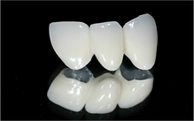 Dr. Eugene Lim at Healing Dental Care in Los Angeles provides restorative dentistry such as dental crowns and dental bridges.