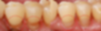 Dr. Eugene Lim at Healing Dental Care in Los Angeles provides restorative dentistry such as composite (tooth-colored) fillings.