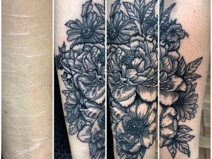 The Scars Project: Australian Artist Gives Free Tattoos to Victims of Self-Harm