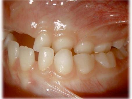 Você saberia identificar problemas de mau posicionamento dentário em seu filho?