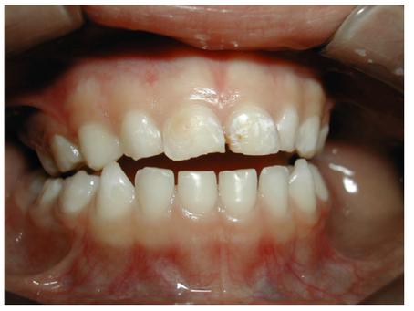 Você saberia identificar problemas de mau posicionamento dentário em seu filho? Parte 2
