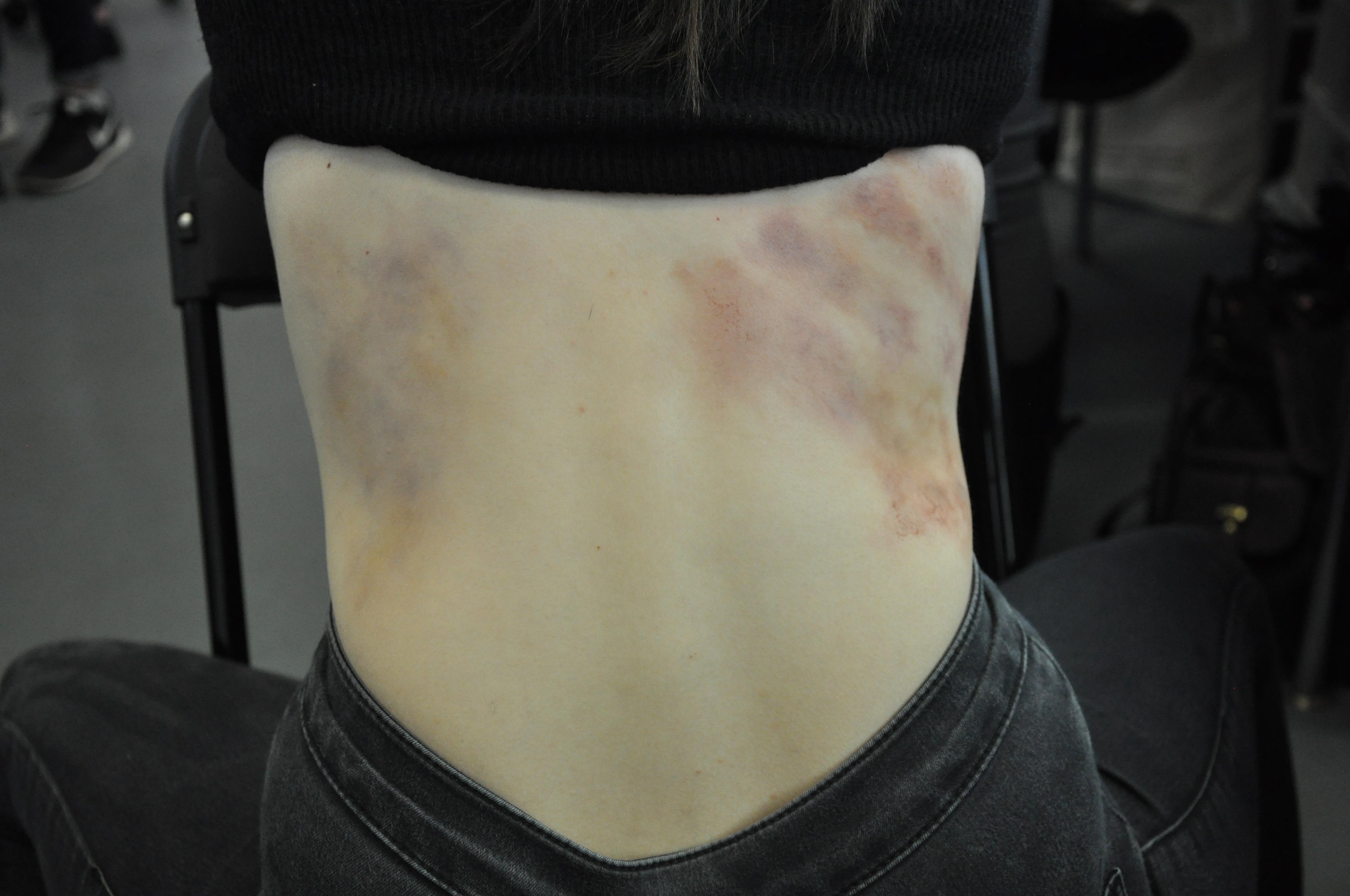 Body Bruising